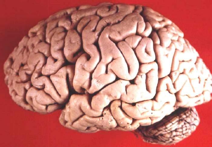 Human_brain_lateral_view